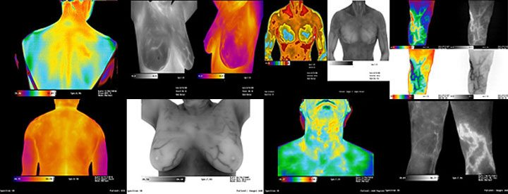 Medical Thermal Imaging Thermography