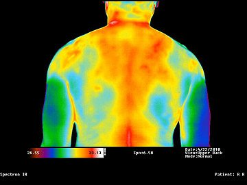 Inflammation Thermography
