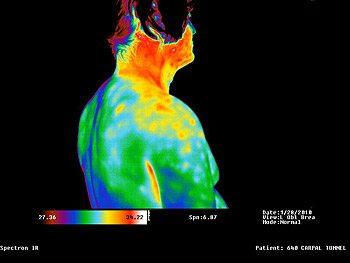 Medical Infrared Camera