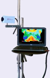 Products- Basic 640x480 Dedicated Medical Thermography System
