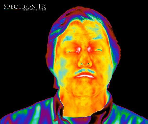 Thermal Image of Sinus
