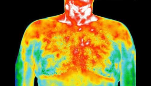 Medical Thermal Image of Male Chest