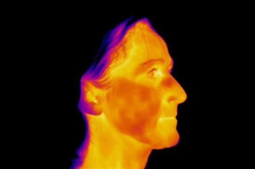 Medical Thermal Image of Right Face