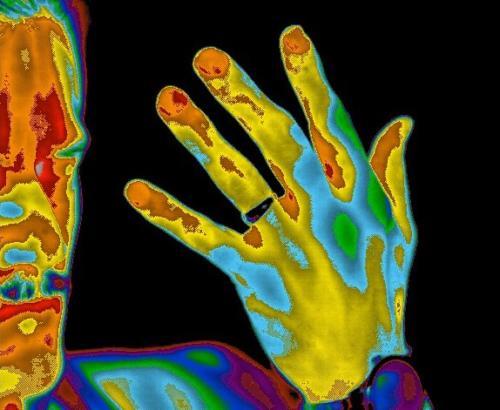 Dorsal Hand