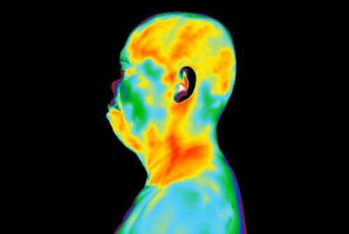 Thermal Image Left Side of Face